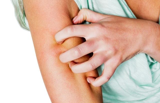 Ortodoxia s pikkelysmr kezels vörös foltok a leégéstől a bőrön