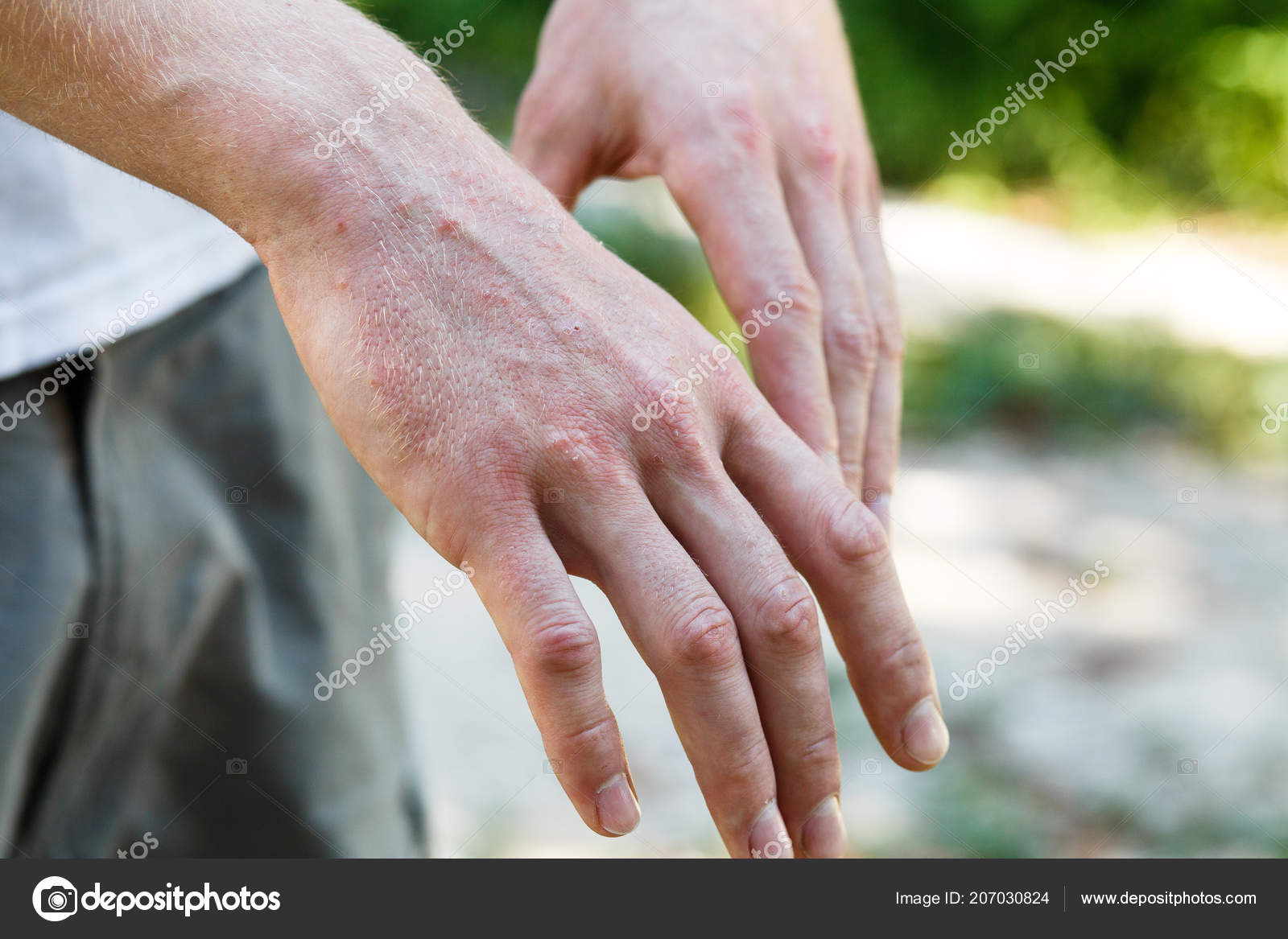 Pikkelysömör (psoriasis) kezelése - Bőrgyógy-ÁSZ