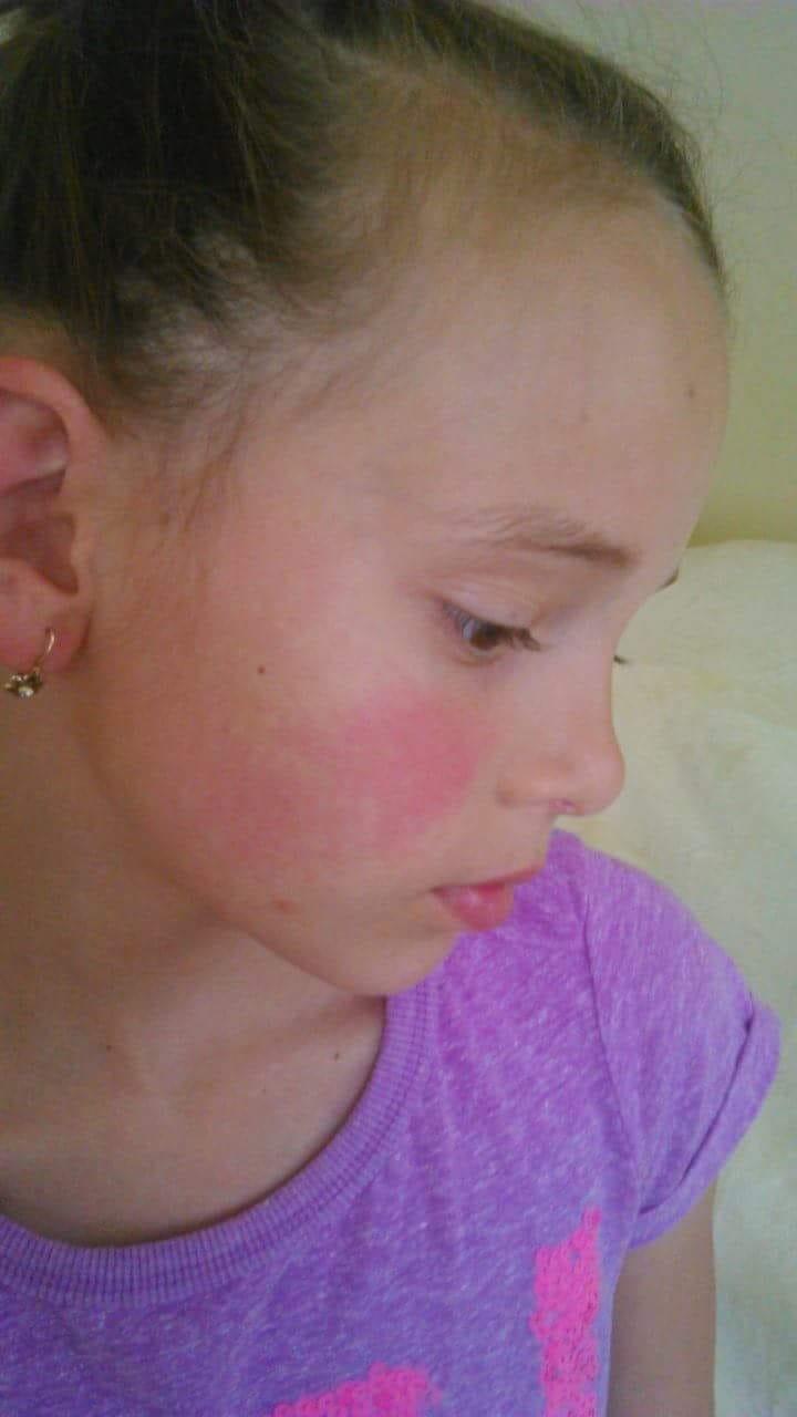 vörös foltok az arcon és láz)