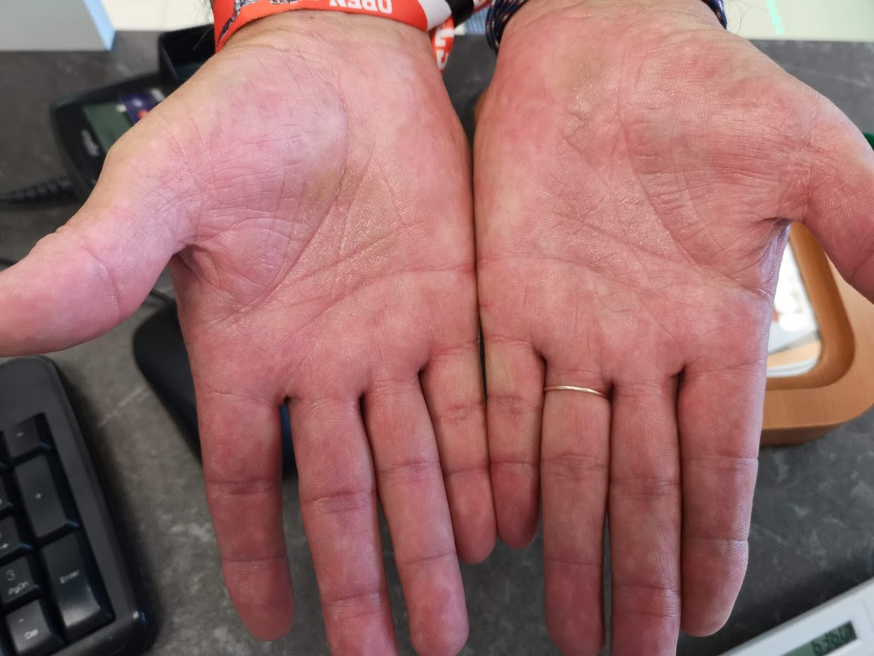 Kiütéses gyermekkori betegségek, Száraz piros foltok a kezek fotó
