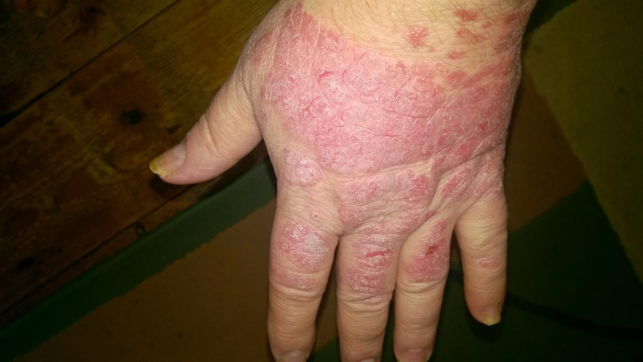 Korbféreg betegség neve - Féregek (helminták) az emberi vékonybélben - Férgek - Korbféreg tünetei