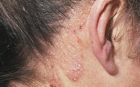 annál jobb a pikkelysömör kezelésére a fején vörös viszkető foltok a nyakon