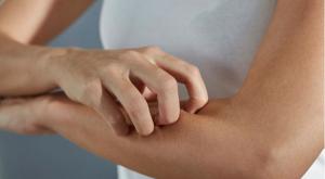 pikkelysömör hosszú ideig gyógyulni és hogyan malavit krém pikkelysömörhöz