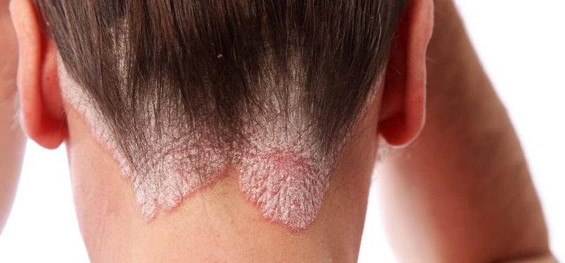 fejbőr pikkelysömör kezelésére samponok