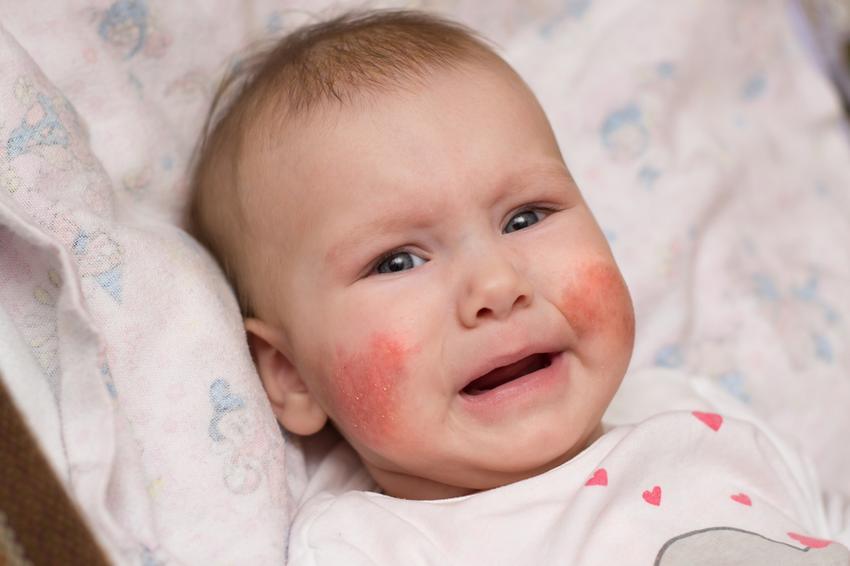 az arcot rendszeresen vörös foltok borítják