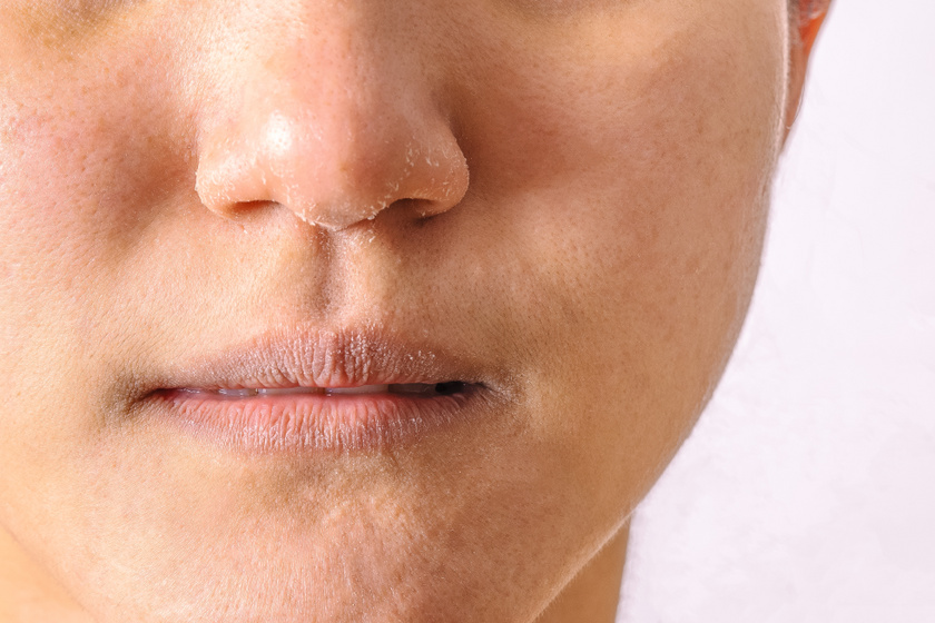 hogyan lehet eltávolítani az orr vörös foltjait hogyan kezeljük a guttate pikkelysömörét otthon