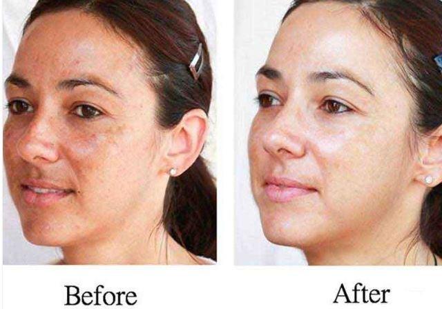 Hogyan lehet fehéríteni a vörös foltokat az arcon - diora.hu
