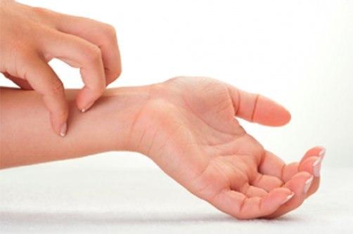 kezét vörös foltok borítják és kiszáradnak