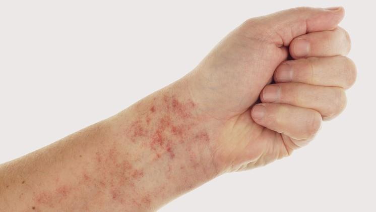 vörös foltok pikkelyesedéssel a test közepén vörös foltok a homlokán egy felnőtt viszketésben