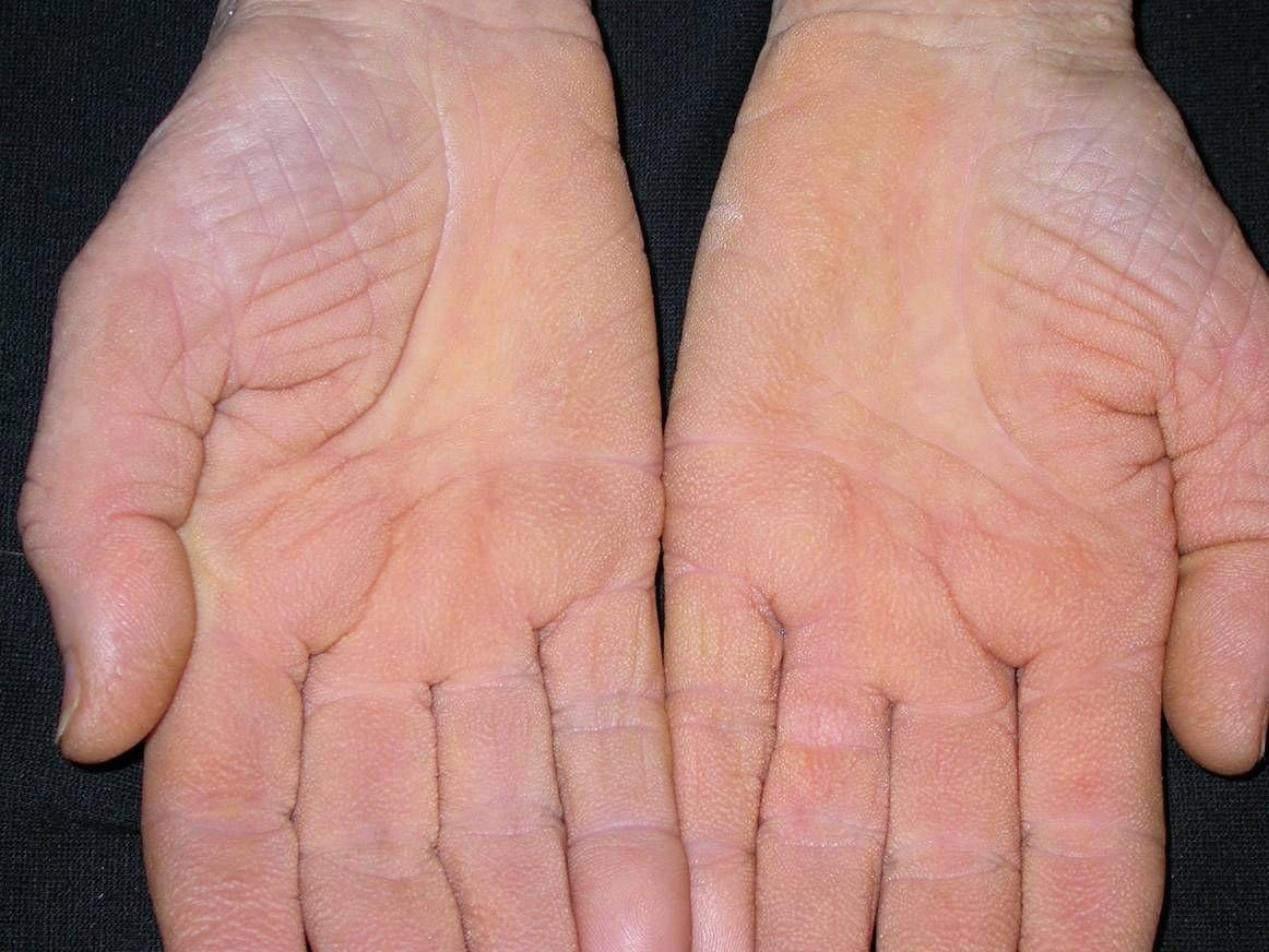 pikkelysömör kezelése chita gyógyszer pikkelysömörhöz k betjvel