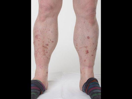 egy felnőttnek piros durva folt van a lábán)