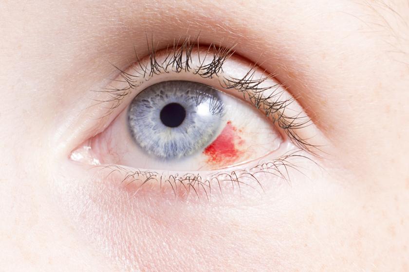 a szemhéjon vörös foltok lehúzódnak és viszketnek)