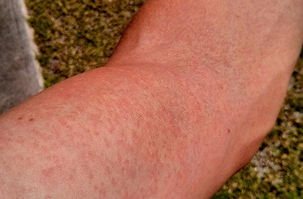 Retikünor-oil.hu - Ezt kend a lábadra szőrtelenítés után! – 1 nap alatt eltűnnek a piros pöttyök!