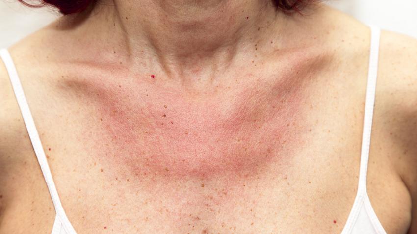 vörös foltok a nyakon és a hason