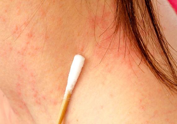 vörös pikkelyes foltok a testen és a kezeken phosphogliv pikkelysömör kezelése