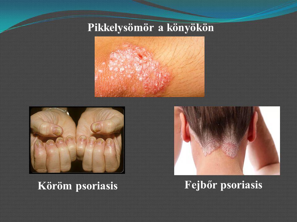 hogyan kell kezelni a psoriasis vulgaris